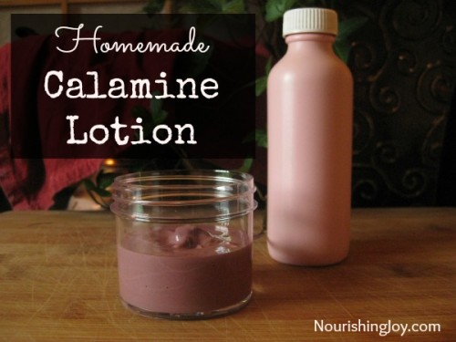 calamine lotion (via nourishingjoy)